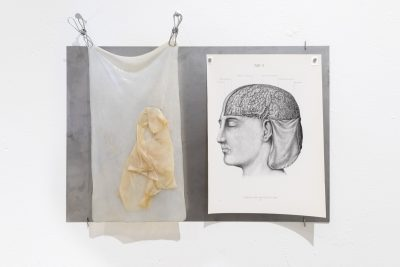 An anatomical illustration of the human brain is pinned next to a sheet of wet bacterial cellulose on a sheet of wall mounted metal.
