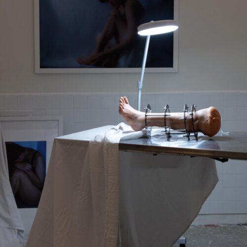 Nari Baek: Ilizarov (13 Years Old) (installation view), 2019.