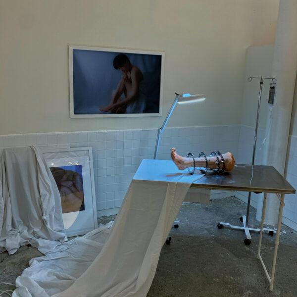 Nari Baek: <i>Ilizarov (13 Years Old)</i> (installation view), 2019.